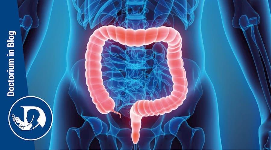 Sindromi Poliposi Amartomatosa