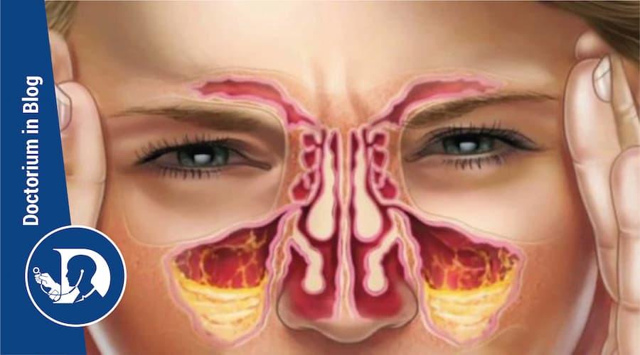 sinusite cronica